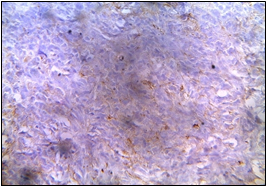 EMA- Negative in tumor cells (Department of Pathology, King George Medical University, Lucknow_ https://ucjournals.com)