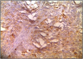 GFAP- Positive in scattered areas. (Department of Pathology, King George Medical University, Lucknow_ https://ucjournals.com)