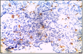 LCA- Negative in tumor cells. (Department of Pathology, King George Medical University, Lucknow_ https://ucjournals.com)