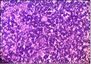 PNET-like component ((Department of Pathology, King George Medical University, Lucknow_ https://ucjournals.com)