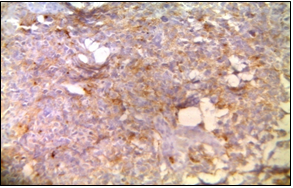 Synaptophysin- Focal positive in PNET like component. (Department of Pathology, King George Medical University, Lucknow_ https://ucjournals.com)