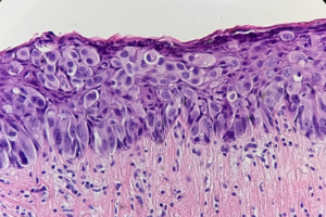Fig. 10 Paget`s cells often compress the basal keratinocytes that lie between Paget cells and the papillary dermis. Paget cells are located singly or in the form of nests with sparse duct formations.