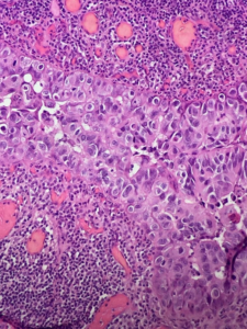 Fig. 11 Dermal pseudo-invasion of Paget's cells. It is noteworthy that this is not a true dermal invasion, but only pseudo-immersion into the dermis along the adnexal ducts.