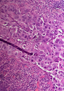 Fig. 12 Dermal pseudo-invasion of Paget's cells. Same case as Fig. 11, different field of view.