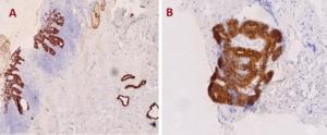 Fig. 13. A & B