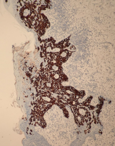 Fig. 14 Strong expression of CAM5.2 in Paget`s cells.