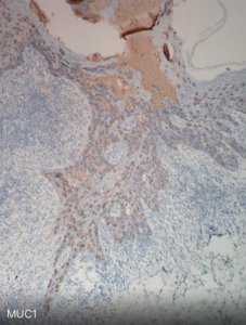 Fig. 16 Paget cells are also characterized by weak expression of mucins, including MUC1.