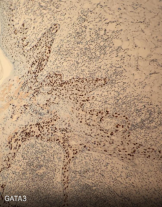 Fig. 17 Paget cells are also characterized by high expression of GATA3, as in other breast tumors, including ductal carcinomas.