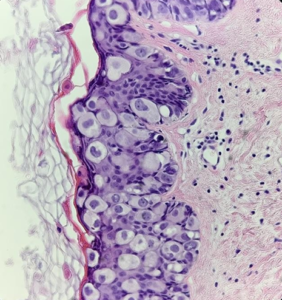 Fig. 18 Toker cells in the epidermis. These cells have less pleomorphism and mitoses (unlike Paget cells) and rare nucleoli.