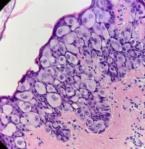 Fig. 19 Hyperplastic Toker's cells in the epidermis. Pronounced pleomorphism of cells and nuclei, prominent nucleoli, figures of mitosis, but less in comparison with Paget cells
