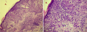 Fig. 21 A-B. Melanoma of the nipple. Melanocytes vary greatly in size as well as nuclear atypia. Note the lack of melanin depositions.