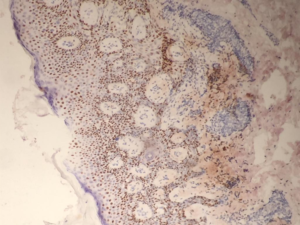 Fig. 24 IHC study of the above case. Strong diffuse expression of p63