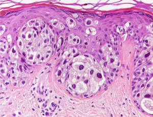 Fig. 25. BAP1-oma with Pagetoid cells. Pagetoid cells infiltrate all layers of the epidermis. Prominent pleo- and polymorphism. [37]