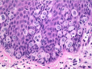 Fig. 4 Giant Paget cells large tumor cells with mitotic figures and atypia.