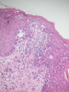 Fig. 5 Toker's giant cells are also large cells, with a voluminous light cytoplasm, but without pleomorphism, mitotic figures can rarely be observed, but atypical mitoses are absent