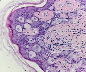Fig. 6 Atypical toker cells. There is Pagetoid spread of cells in the epidermis, but without dermal invasion. Well visible nucleoli, giant multinucleated atypical cells are visible.