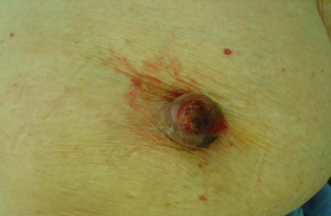 Fig. 8 Gross view of Paget's breast disease. There are severe ulceration of the nipple and crusting.