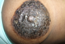Fig. 9 Pigmented form of Paget`s breast carcinoma.