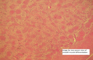 Image 2a -There is a central area of hyalinization from which collagen bands radiate toward the periphery and cells with an 'epithelioid' appearance are embedded in collagen fibers ( Image 2a and image 2b).