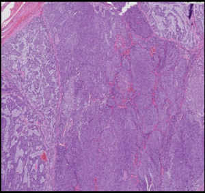 (A): An encapsulated, solid, poorly differentiated thyroid carcinoma (H&E, 4× original magnification)