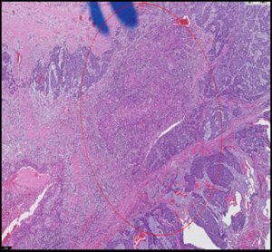 (B): Tumor with an area of squamous components (red circle) (H&E, 4× original magnification)