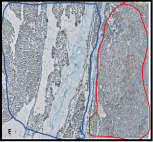 Immunohistochemistry stains: Positivity for TTF1 and PAX8 (10x) in the solid, poorly differentiated part (blue irregular circle) and squamous area (red irregular circle