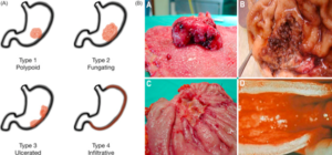 Figure 4 Growth patterns and macroscopic appearance of advanced gastric cancer according to the Bormann classification [13]