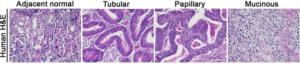 Figure 5 Representative histological photographs (H&E) of human gastric cancer [17]